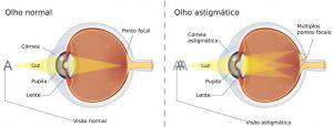 b_300_0_16777215_00_https___hypescience.com_wp-content_uploads_2019_04_astigmatismo-838x320.jpg
