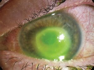 b_300_0_16777215_00_https___hypescience.com_wp-content_uploads_2019_07_infeccao-lentes-de-contato-cegueira-legal-838x625.jpg