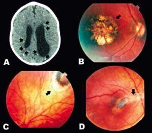 Ação da Toxoplasmose no globo ocular e na massa encefálica