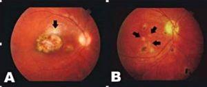 Cistos de T. gondii encontrados em retinas estruturalmente normais