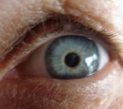 Glaucoma: Doença silenciosa que causa cegueira
